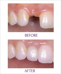 cosmetic implant clinical