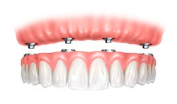 Dental Implant in Davie